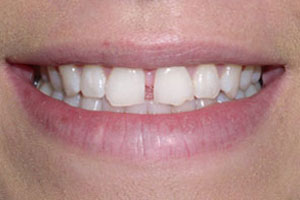 Before-Dental Bonding Gap
