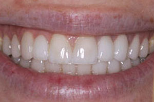 After-Crown Before and After photos Del Sur Dentistry 92127