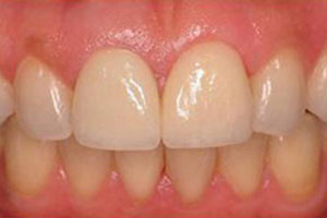 After-Dental Crown Before and After