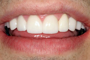 After-Dental Crown Before and After Photo at Del Sur Dentistry San Diego 92127