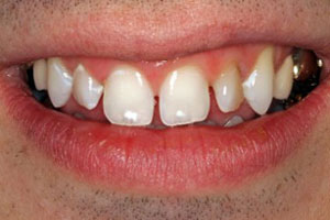 Before-Dental Crown Before and After Photo at Del Sur Dentistry San Diego 92127