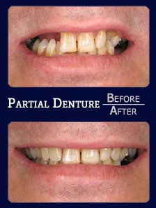 Denture before and after results