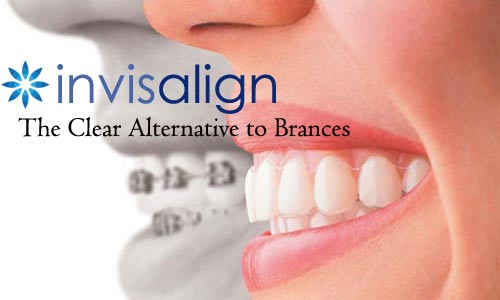 Invisalign Gallery Before and After Photos