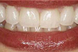 After-Veneer Before and After Photo