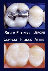 White Fillings before and after results