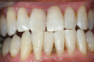 After-Zoom Teeth Whitening Before and After