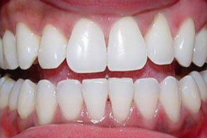 After-Zoom teeth whitening Del Sur Dentistry San DIego 92127